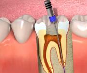Tratamento de Endodontia